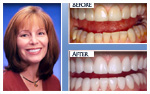 Before and After Photo – Porcelain crowns, porcelain veneers