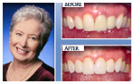 Before and After Photo – Teeth whitening, two porcelain crowns, two porcelain veneers