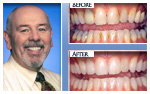 Before and After Photo – teeth whitening, bonding, tooth-colored fillings, porcelain crowns