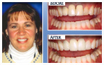 Before and After Photo – Gumlift, tooth whitening, three porcelain crowns, one porcelain veneer