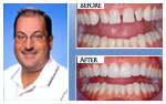Before and After Photo – Tooth whitening, porcelain veneers and direct bonding