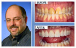 Before and After Photo – Tooth whitening and porcelain veneers