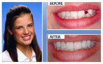Before and After Photo – Tooth whitening, direct bonded veneer and bonded Maryland bridge