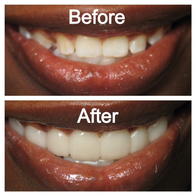 Snap-On Smile® before and after photos.