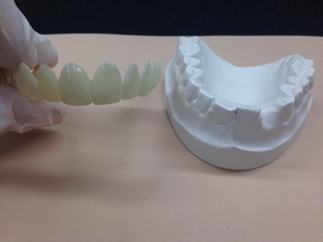 Snap-On Smile® mold.