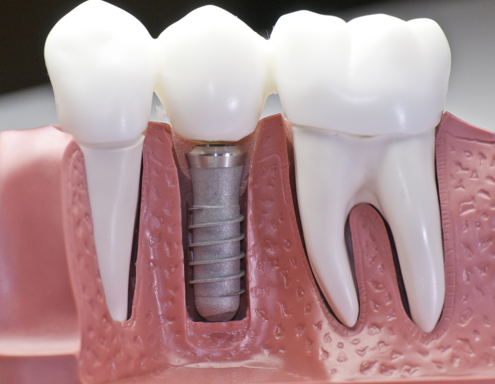 Should you get a dental implant instead of a dental tooth bridge
