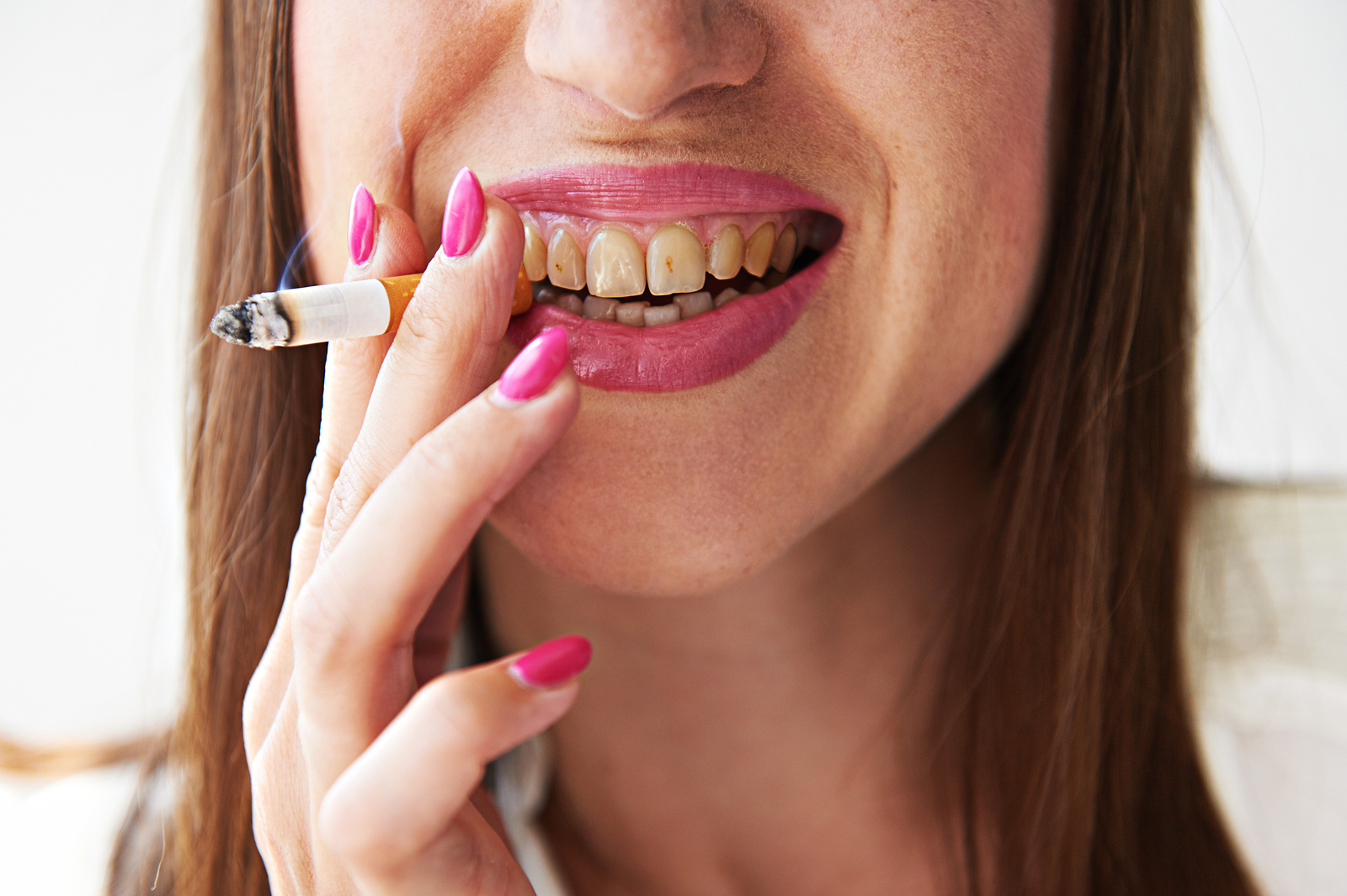 A Philadelphia Cosmetic Dentist Can Whiten Teeth with Nicotine Stains