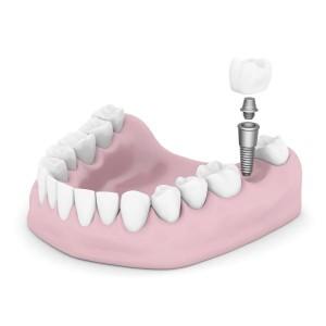 Implants Teeth Scottsdale