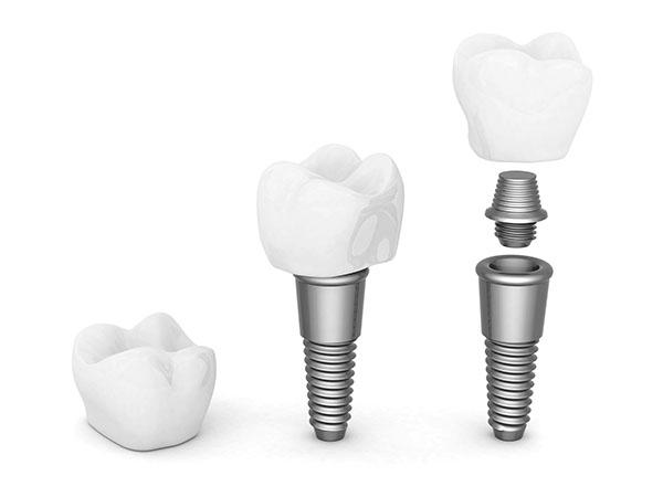 Implants Teeth in Scottsdale
