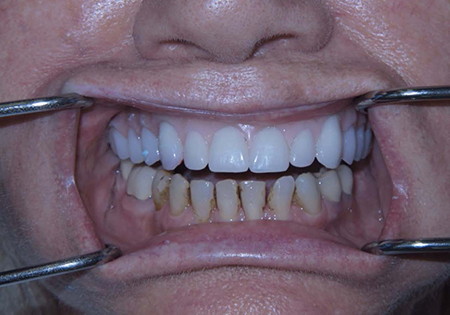 Dental patient wearing wax up