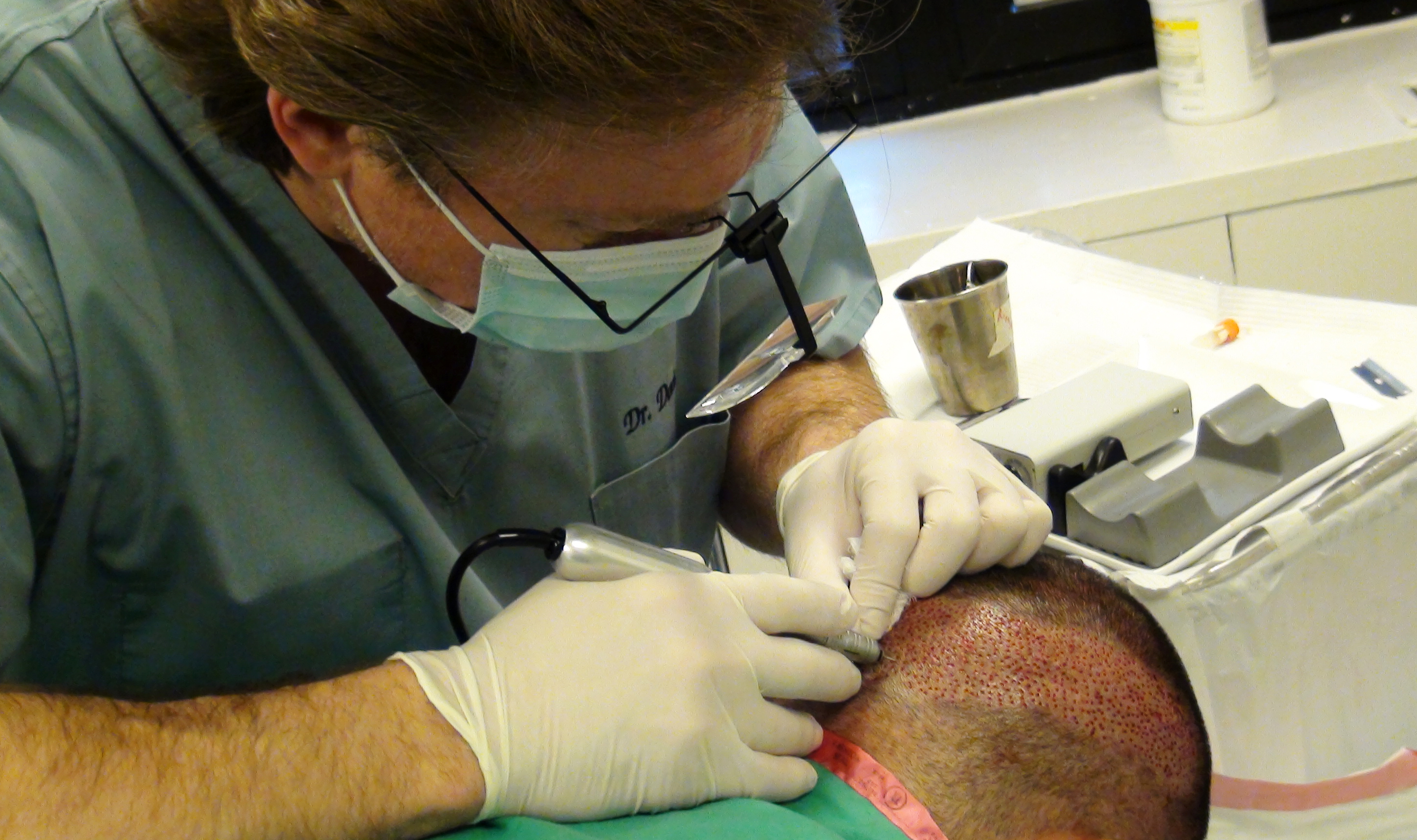 Doctor performing surgical hair restoration