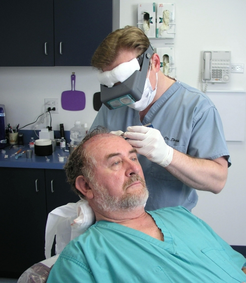 Patient undergoing hair restoration surgery