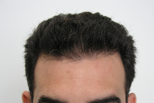 Close up of man's thick and wavy hair