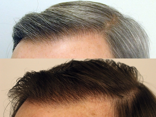 Close up shots of man's scalp