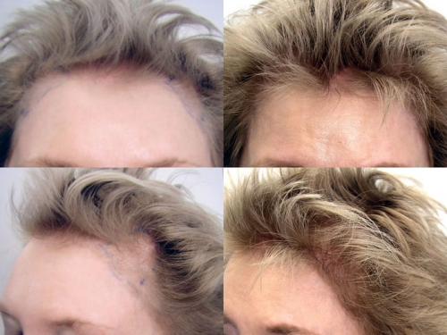Before and after hair restoration pictures