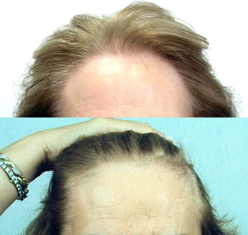 Before and after hair restoration part